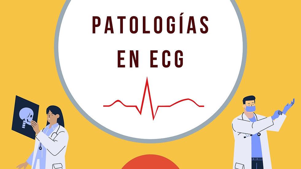 Taller de Patologías en ECG/ACLS