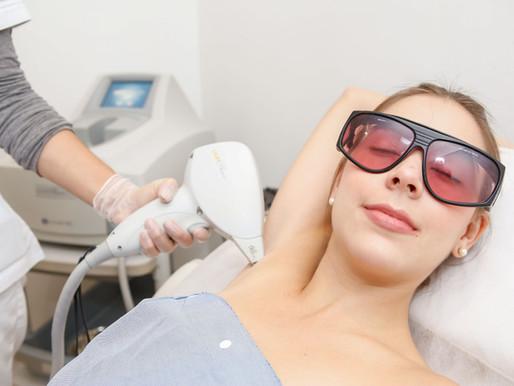 Preguntas frecuentes de la depilación láser definitiva