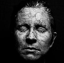 Understanding Head Trauma