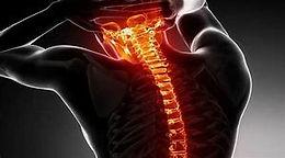 Understanding Spinal Cord Trauma