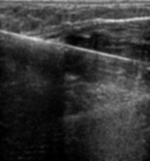 Ultrasound-guided steroid injection