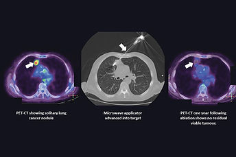 Destroying cancer cells with heat