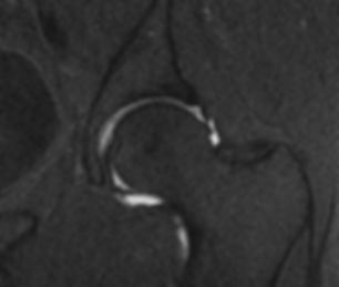 MRI Arthrogram