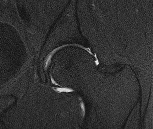 MRI Arthrogram