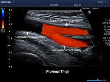 vascular.jpg