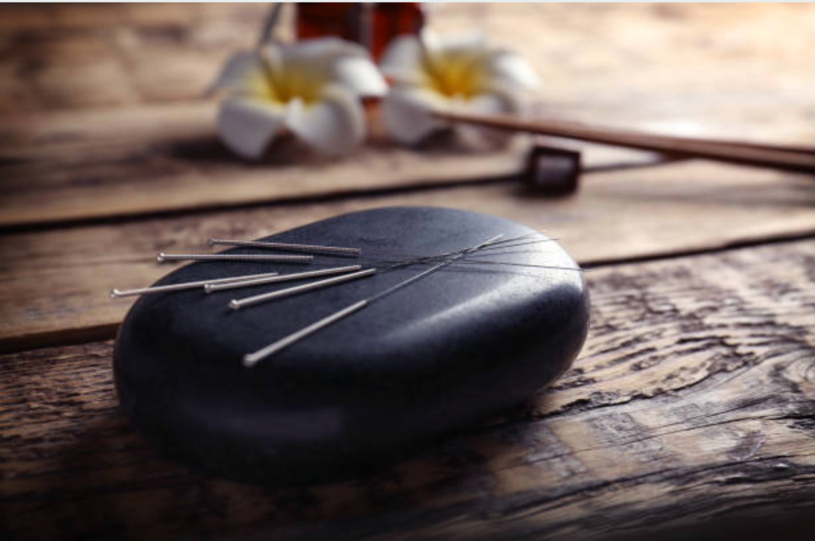 Acupuncture Treatment: With Insurance
