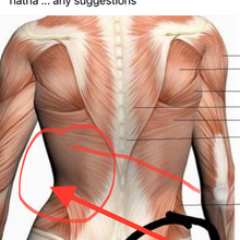 right side sleeper hip pain symptoms