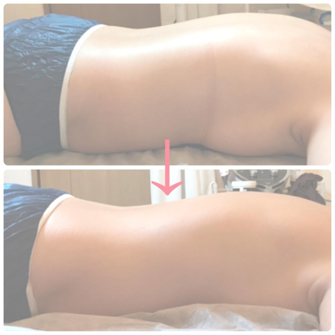 Befor - After 疲れの溜まったお背中は厚く、大きくなります。リンパドレナージュ後、厚みのない軽いお背中に。
