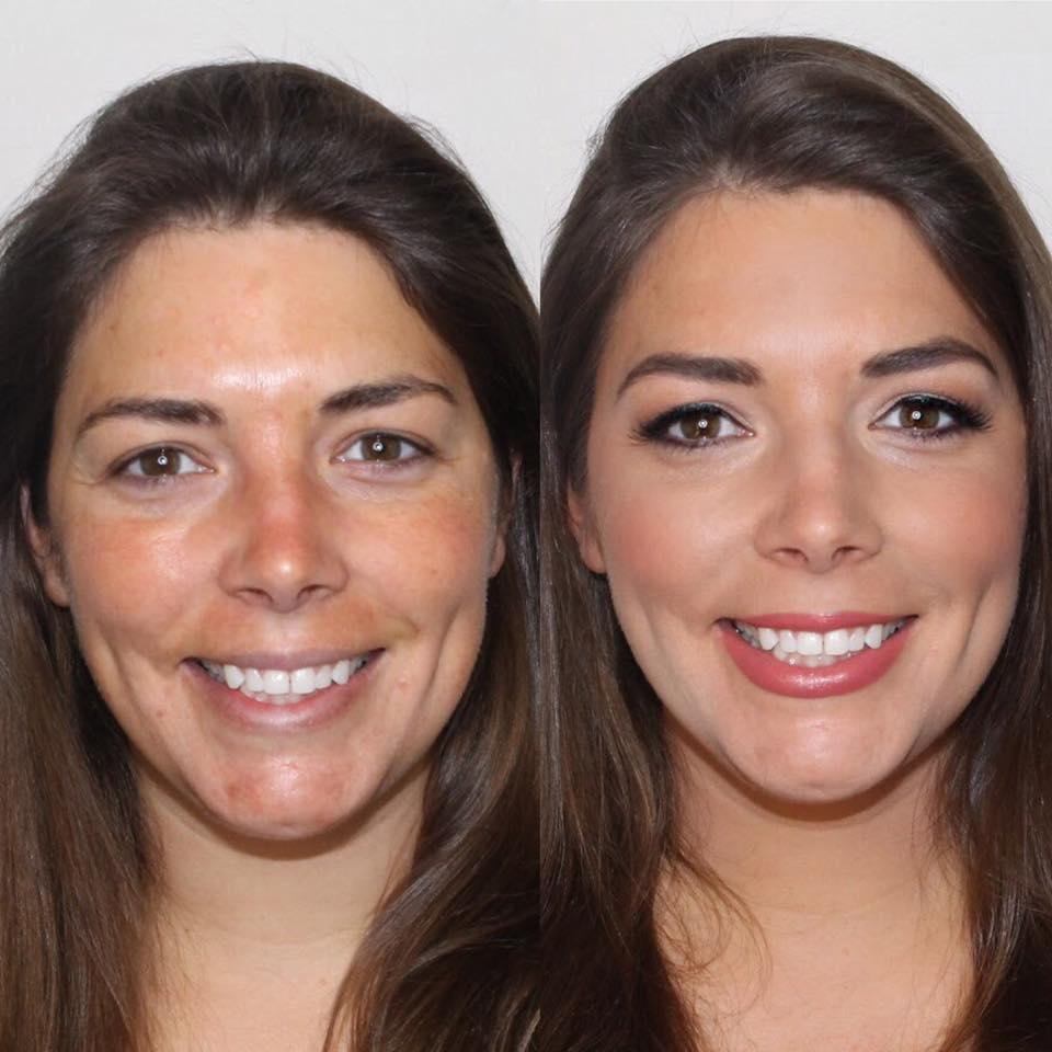 before&afterairbrushmakeupbostonmsakeupartistjessicagaldy