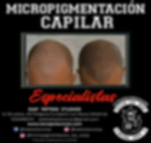 microcapilar.jpeg