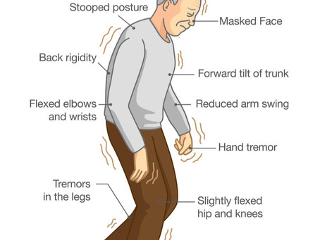Orthostatic Hypotension in Patients with Parkinson Disease