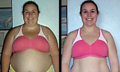 weight-loss-austin-tx