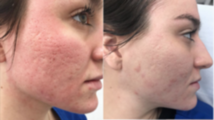 acne-scar-1200x1200.png