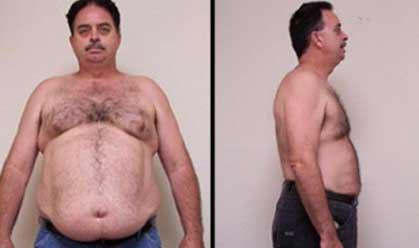 austin-weight-loss
