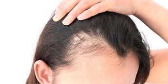 portland-female-hair-loss-treatment-1200