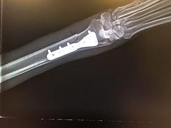csont rtg 9.JPG