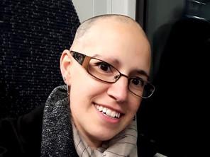 Sono Beatrice e ho l'alopecia