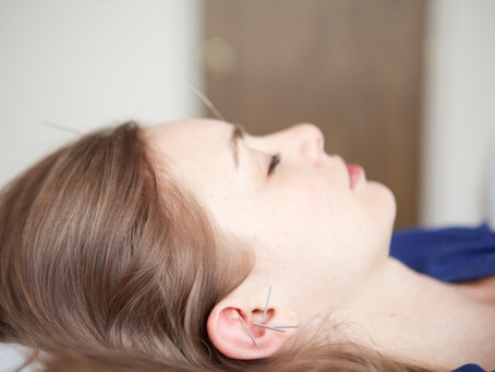 Interview on Community Acupuncture