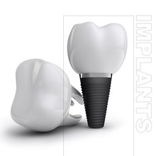 Dental Implants Burnaby
