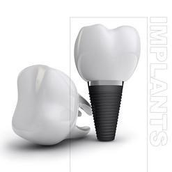 Dental Implants Burnaby