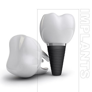 Dental-Implants-Dentist-Burnaby-ARTA-DEN