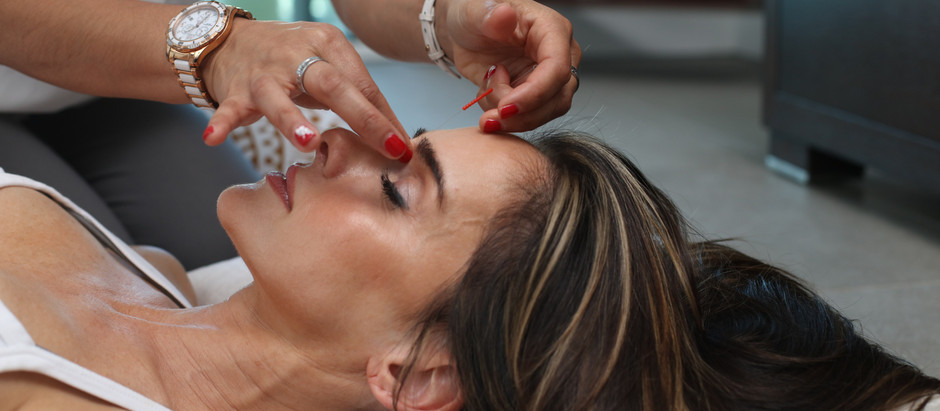 What is Cosmetic Acupuncture & how does it work?