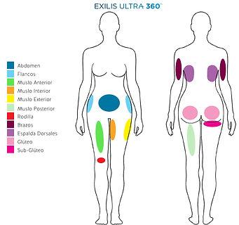 Areas-Tratamiento-Exilis-Ultra-360-Corpo