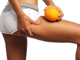 4 Mitos y Verdades sobre la Celulitis