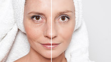 Tratamientos No Quirúrgicos para el Rejuvenecimiento de la Piel