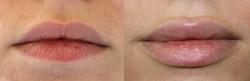 Labios más gruesos