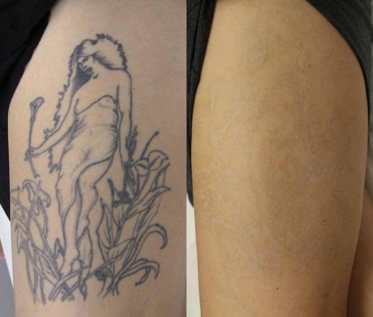 Eliminación de tatuajes.