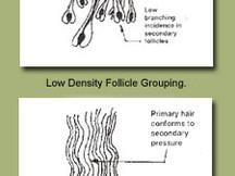 Follicles and Fiber Type