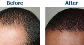 Non-Surgical Hair & Skin Restoration