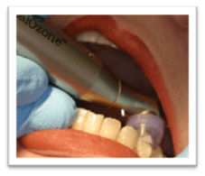 Ozonioterapia Odontológica