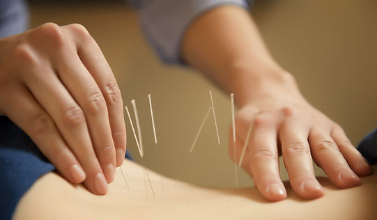 Acupuncture for back pain neck pain and nearly everything else!