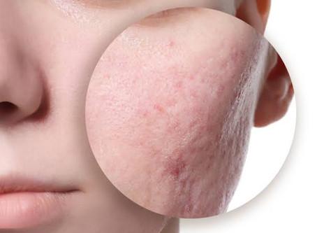 Cicatrizes de acne: como tratar?