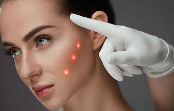 LASER e tecnologias em dermatologia.jpg