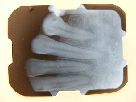 Displasia Osea periapical