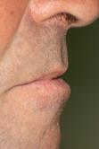 Queilitis Actínica