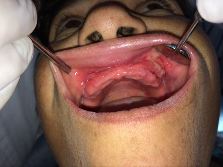 úlcera traumática asociada a PR