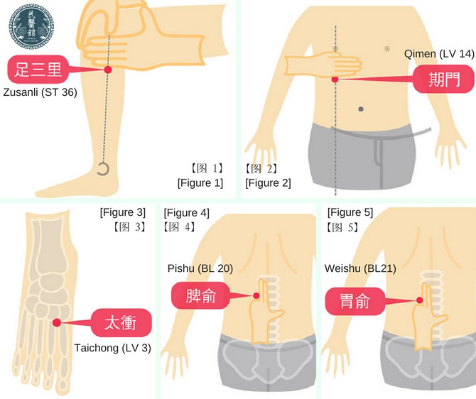 5 Acupuncture points to stay away from digestive disorders
