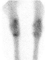 Equine Bone Scan from Pegasus in Redmond Washington