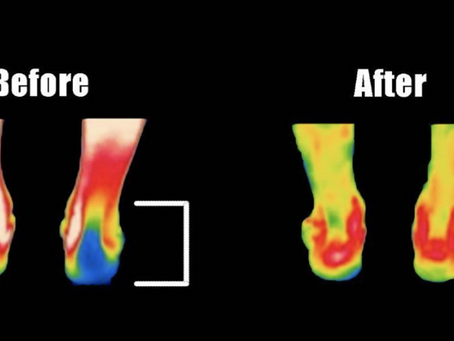 Load Monitoring & Injury Prevention with Infrared Thermography