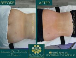 body liposuction plan4 progress  treatme