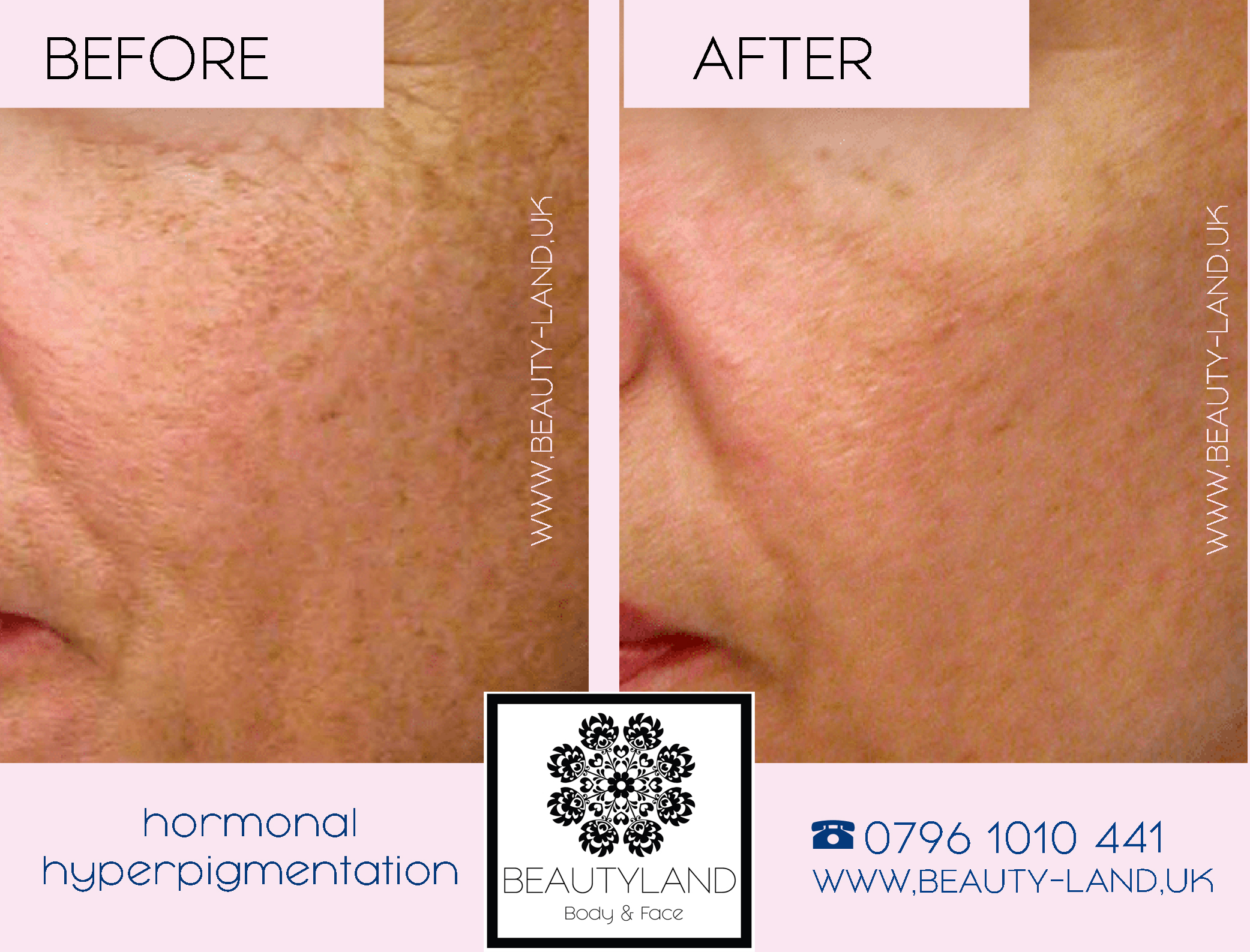 BEAUTYLAND HYPERPIGMENATTION  MELASMA or