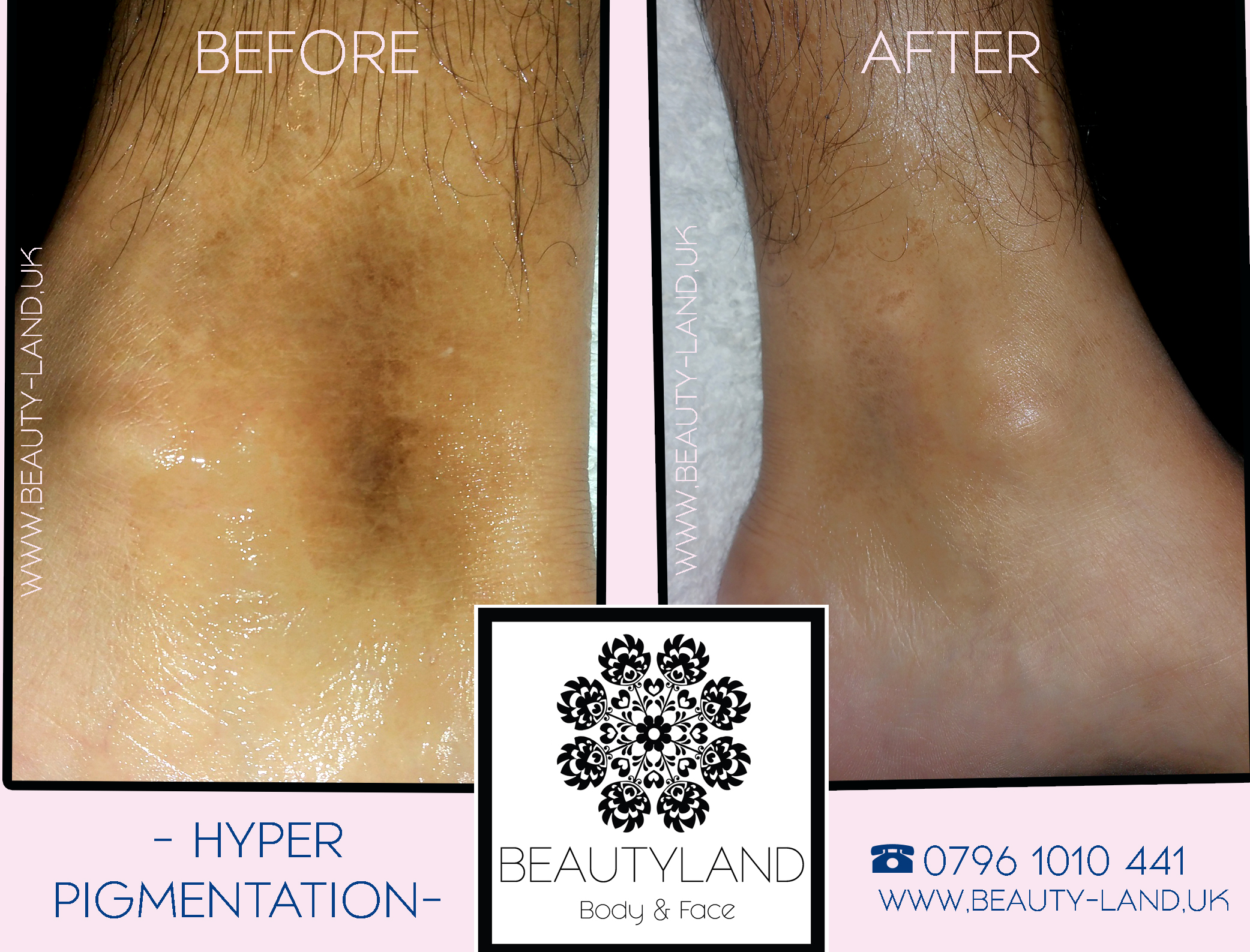 BEAUTYLAND HYPERPIGMENATTION TREATMENT W