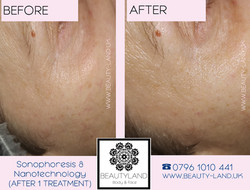 ANTI WRINKLES 2  BEFORE AFTER do przed p