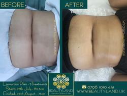 body liposuction plan 5 treatments  trea