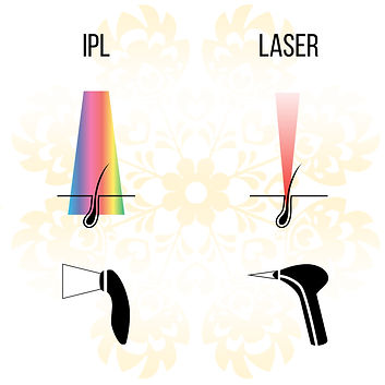 BEAUTYLAND WALSALL LASER -Laser-And-Ipl-