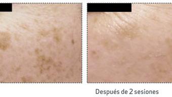 Get rid of dark Spots & Hyperpigmentation Fast !